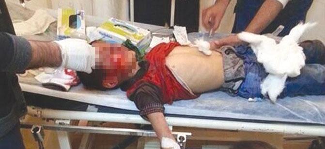 Gaz fişeğiyle yaralanan çocuğun durumu iyi