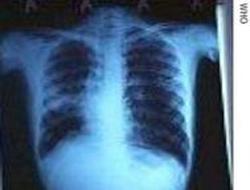 Türkiye'de 200 bin kayıtsız verem hastası var