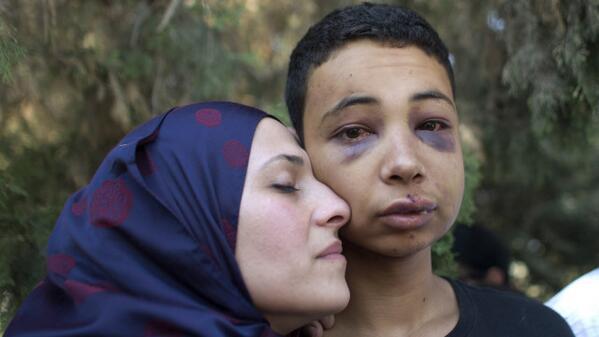 Siyonistler Hudeyr'in Kuzenine Böyle Saldırmış-VİDEO
