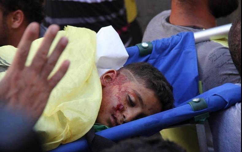 Gazze'de Bilanço : 476 Şehid, 3130 Yaralı