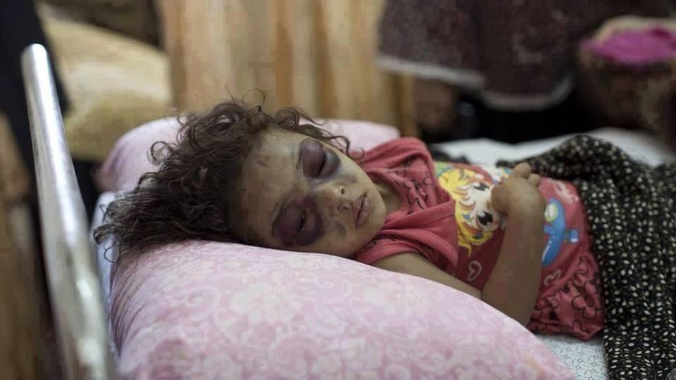 Gazze'de ki Son Bilanço: 1296 Şehid 7200 Yaralı