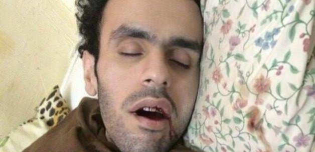 Mısırlı Aktivistin Durumu 'Vahim'