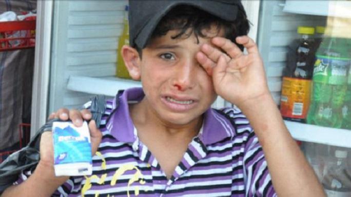 Suriyeli Çocuğa Esnaftan Dayak!