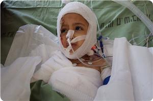 """Kendine Gelen Filistinli Çocuk: """"Niçin Yakıldım?"""" Dedi"""