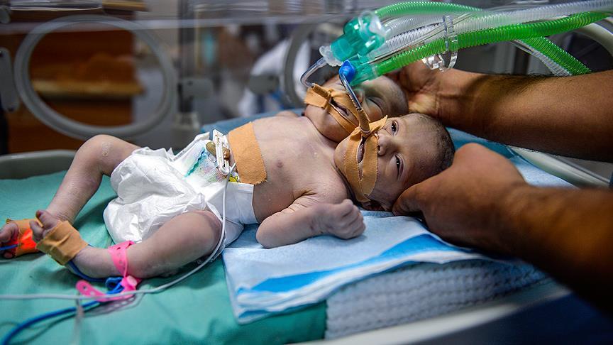 Gazze'de  Siyonistler Yüzünden 15 Hasta Vefat etti