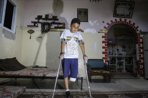 Gazzeli Çoçuk : Bacağımı Kaybedecek Hangi Suçu İşledim?