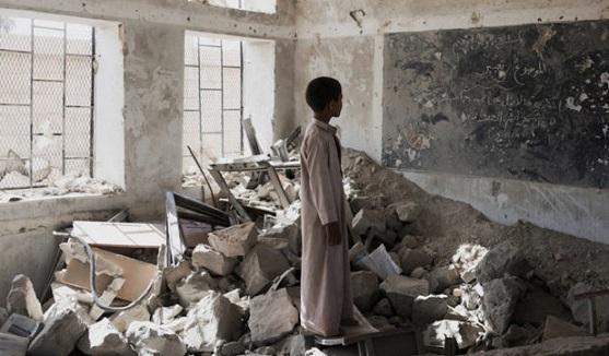 Yemen'deki Savaş'a Dünya Kayıtsız...