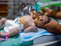Gazze'de  Yapışık İkizler Dünyaya Geldi