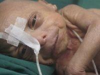 Bangladeş'te Yaşlı Bebek Doğdu
