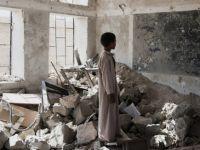 """""""Yemen'de 20 Milyon İnsan Aç"""""""