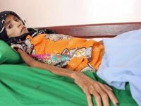 Yemen'deki İnsanlık Dramı Son Noktada